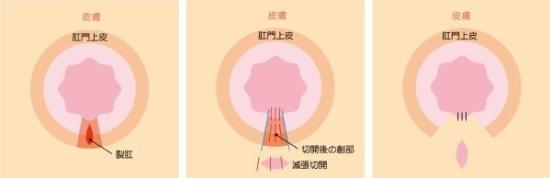 皮膚弁移動術(SSG)